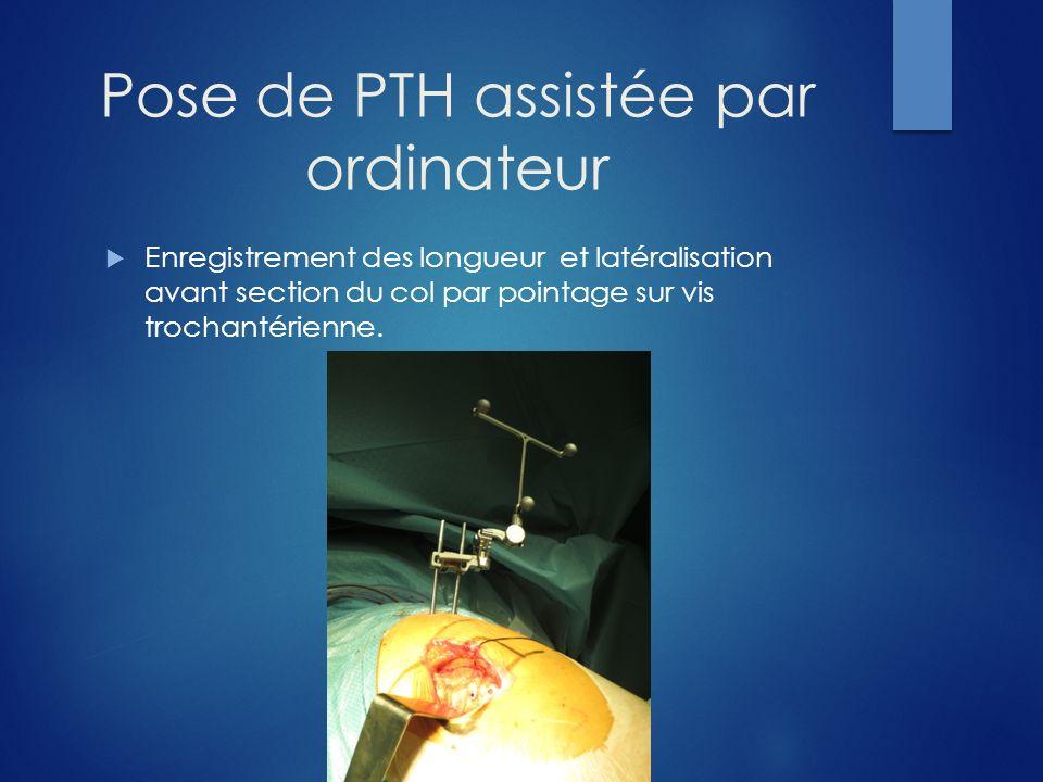 Pose de PTH assistée par ordinateur Enregistrement des longueur et latéralisation avant section du col par pointage sur vis trochantérienne.