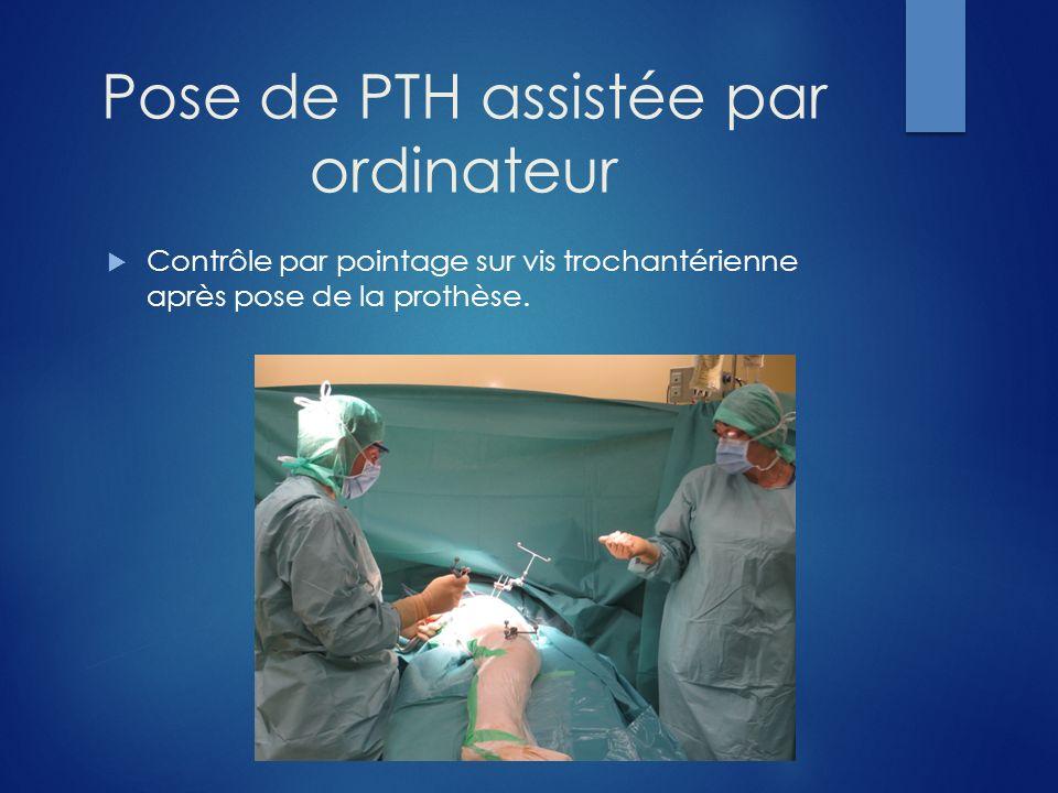 Pose de PTH assistée par ordinateur Contrôle par pointage sur vis trochantérienne après pose de la prothèse.