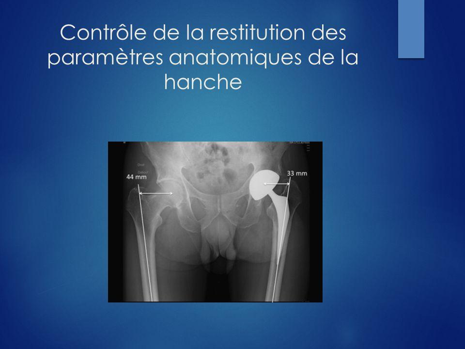 Pose de PTH assistée par ordinateur Critères objectifs, précis et reproductibles de mesure des paramètres anatomiques de la hanche opérée Incite à affiner la hauteur de coupe du col fémoral et la longueur du col prothétique