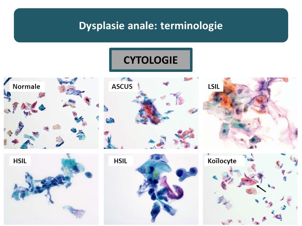 Dysplasie anale: terminologie Normale KoïlocyteHSIL LSILASCUS CYTOLOGIE