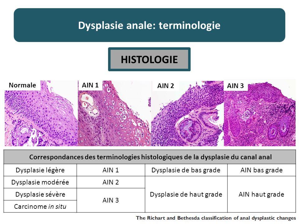 Correspondances des terminologies histologiques de la dysplasie du canal anal Dysplasie légèreAIN 1Dysplasie de bas gradeAIN bas grade Dysplasie modéréeAIN 2 Dysplasie de haut gradeAIN haut grade Dysplasie sévère AIN 3 Carcinome in situ Dysplasie anale: terminologie HISTOLOGIE Normale AIN 3 AIN 2 AIN 1