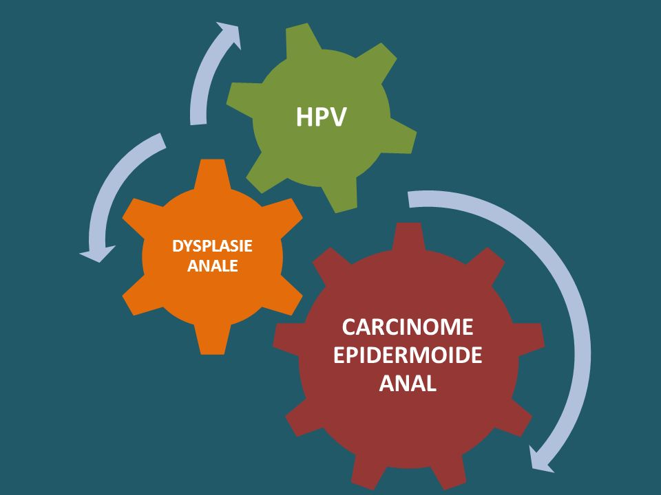 CARCINOME EPIDERMOIDE ANAL DYSPLASIE ANALE HPV