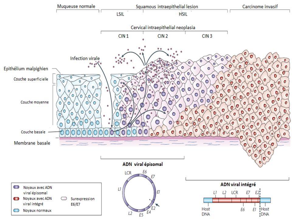 Anal intraepithelial neoplasia