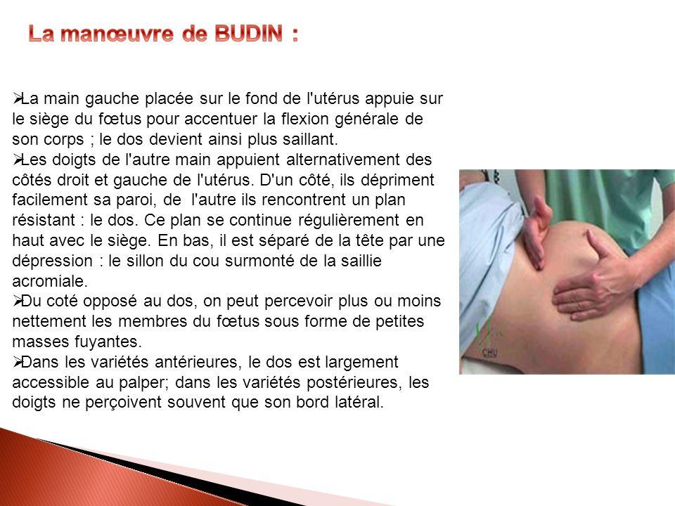 La main gauche placée sur le fond de l'utérus appuie sur le siège du fœtus pour accentuer la flexion générale de son corps ; le dos devient ainsi plus