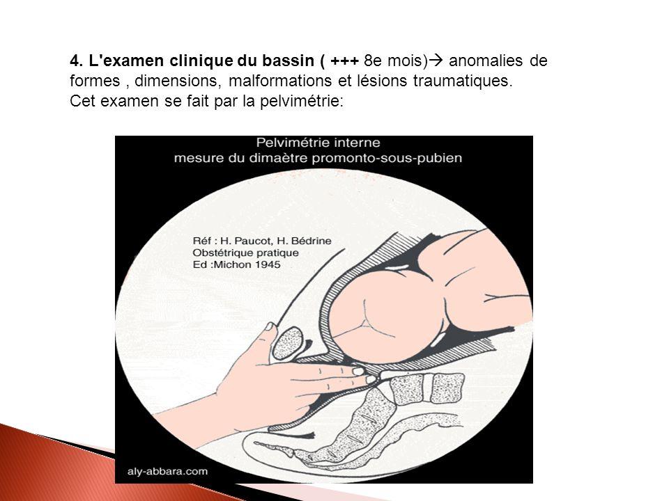 4. L'examen clinique du bassin ( +++ 8e mois) anomalies de formes, dimensions, malformations et lésions traumatiques. Cet examen se fait par la pelvim