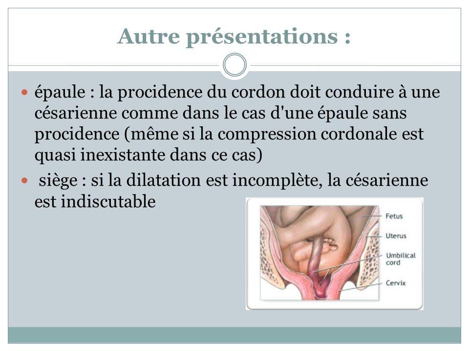 Autre présentations : épaule : la procidence du cordon doit conduire à une césarienne comme dans le cas d'une épaule sans procidence (même si la compr