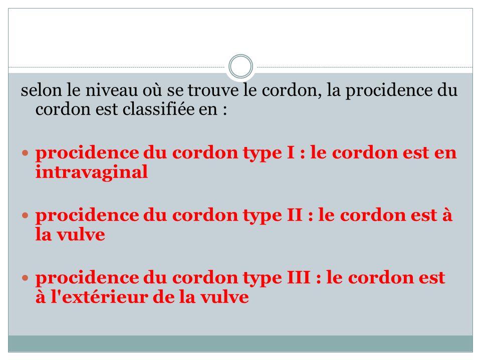 selon le niveau où se trouve le cordon, la procidence du cordon est classifiée en : procidence du cordon type I : le cordon est en intravaginal procid