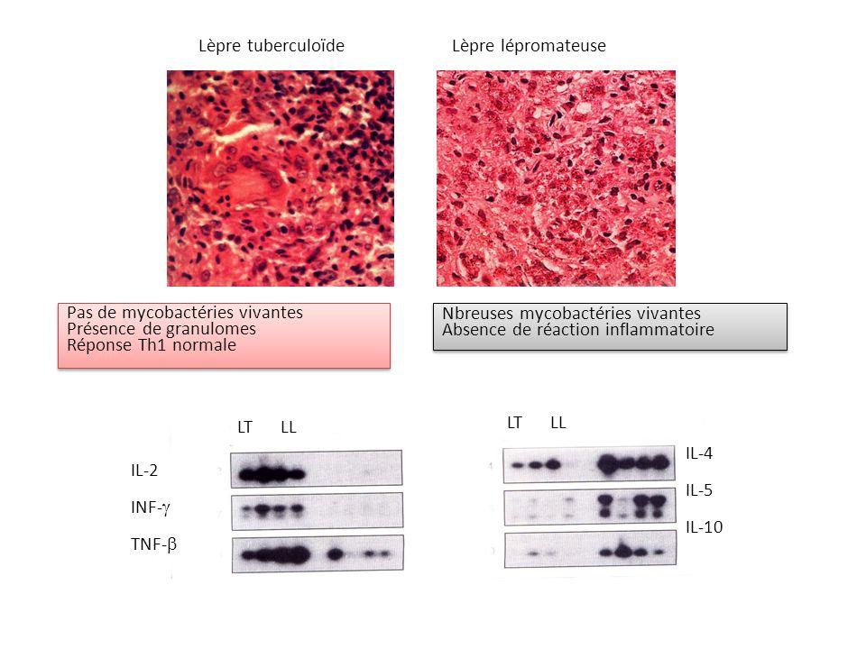 Pas de mycobactéries vivantes Présence de granulomes Réponse Th1 normale Pas de mycobactéries vivantes Présence de granulomes Réponse Th1 normale Nbre