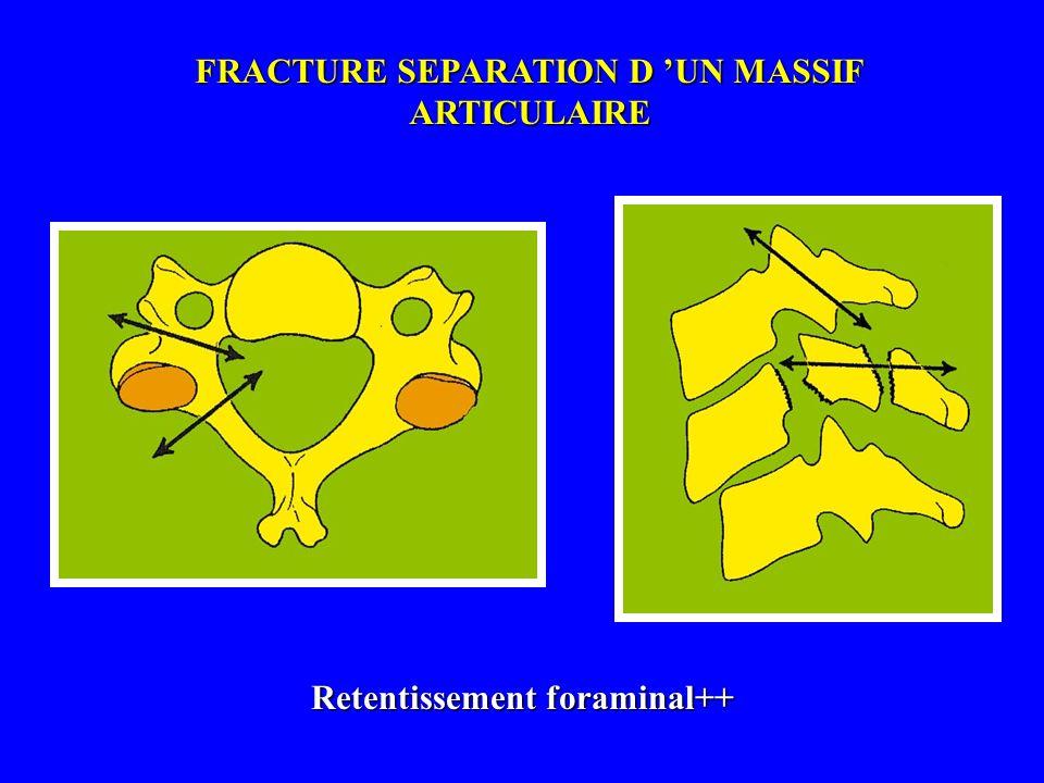 FRACTURE SEPARATION D UN MASSIF ARTICULAIRE Retentissement foraminal++