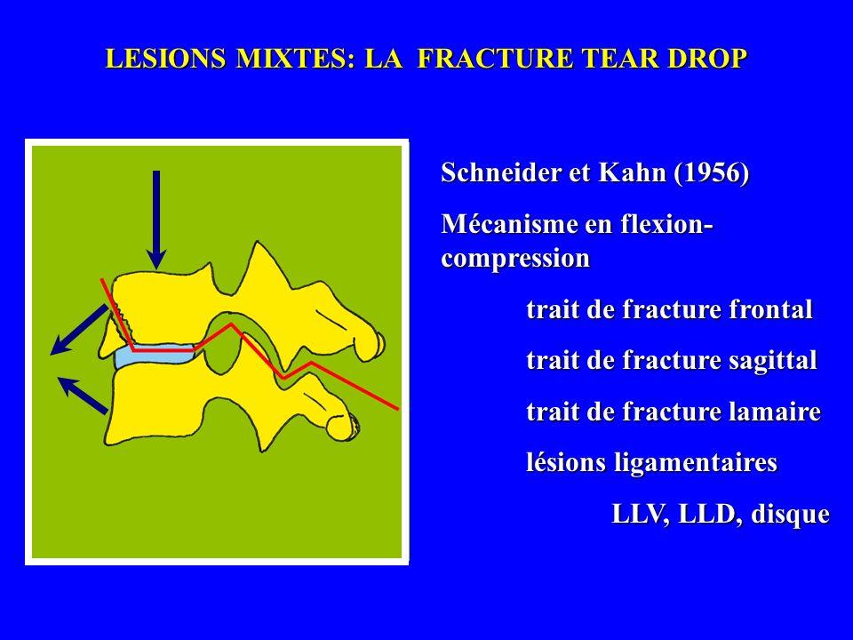 LESIONS MIXTES: LA FRACTURE TEAR DROP Schneider et Kahn (1956) Mécanisme en flexion- compression trait de fracture frontal trait de fracture sagittal