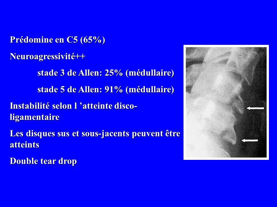 Prédomine en C5 (65%) Neuroagressivité++ stade 3 de Allen: 25% (médullaire) stade 5 de Allen: 91% (médullaire) Instabilité selon l atteinte disco- lig