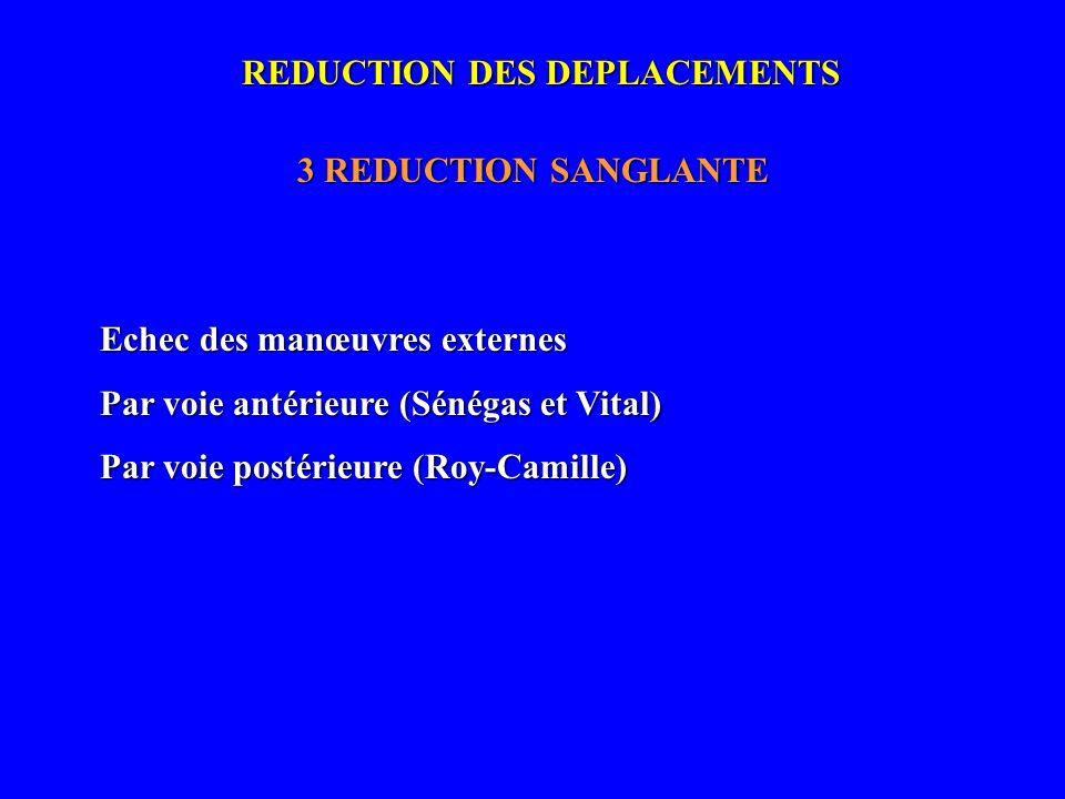 REDUCTION DES DEPLACEMENTS 3 REDUCTION SANGLANTE Echec des manœuvres externes Par voie antérieure (Sénégas et Vital) Par voie postérieure (Roy-Camille