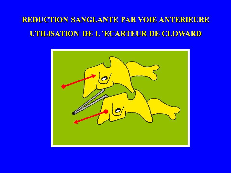 REDUCTION SANGLANTE PAR VOIE ANTERIEURE UTILISATION DE L ECARTEUR DE CLOWARD