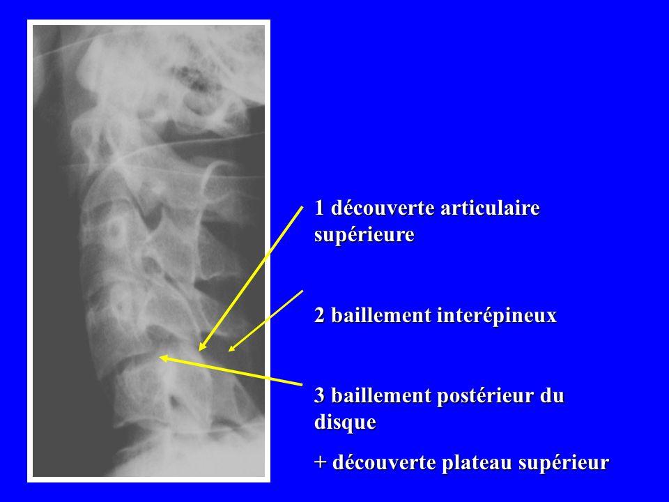 1 découverte articulaire supérieure 2 baillement interépineux 3 baillement postérieur du disque + découverte plateau supérieur