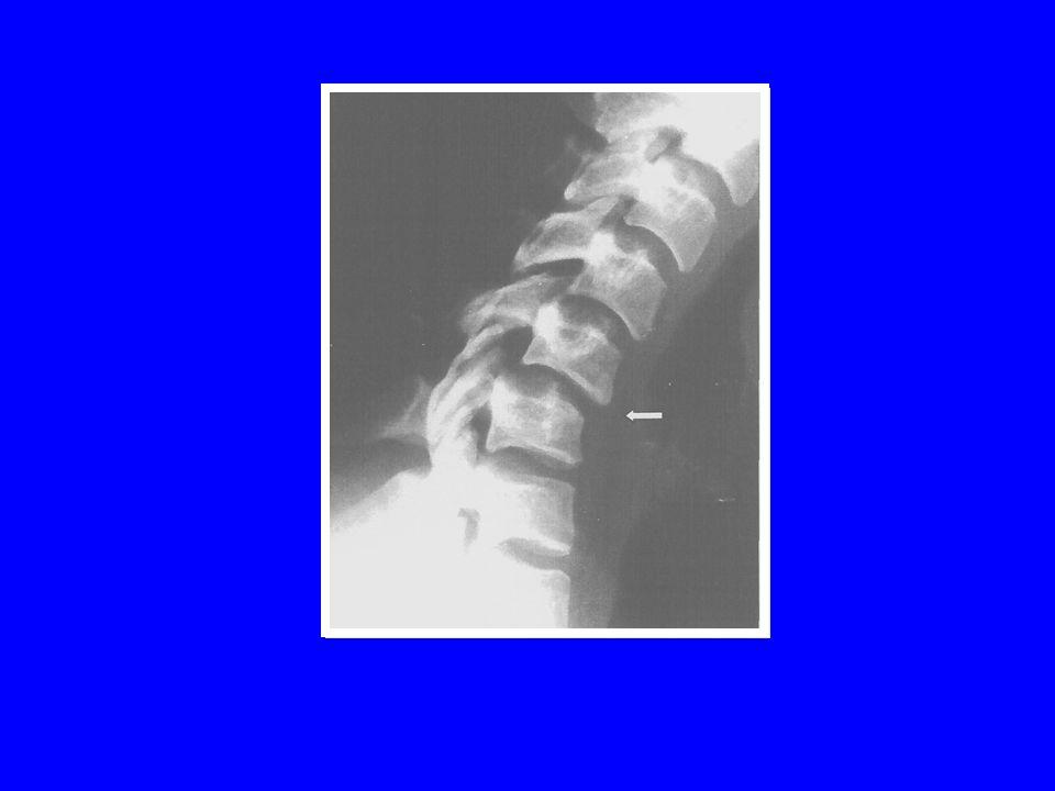LUXATION PURE BILATERALE pointes à pointes accrochage bilatéral 41% de lésions médullaires
