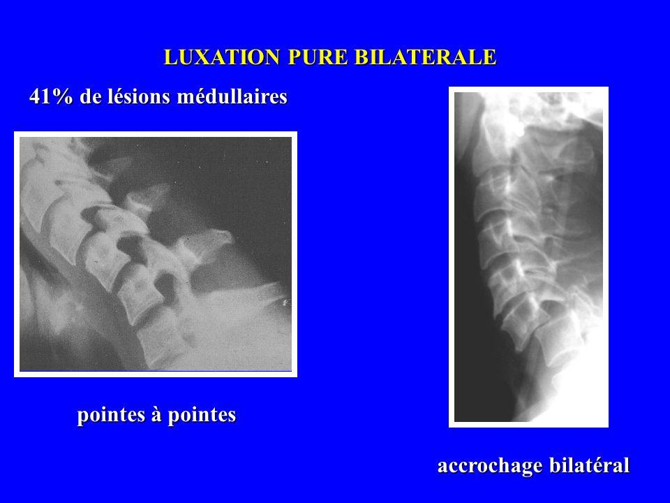 LUXATION UNILATERALE