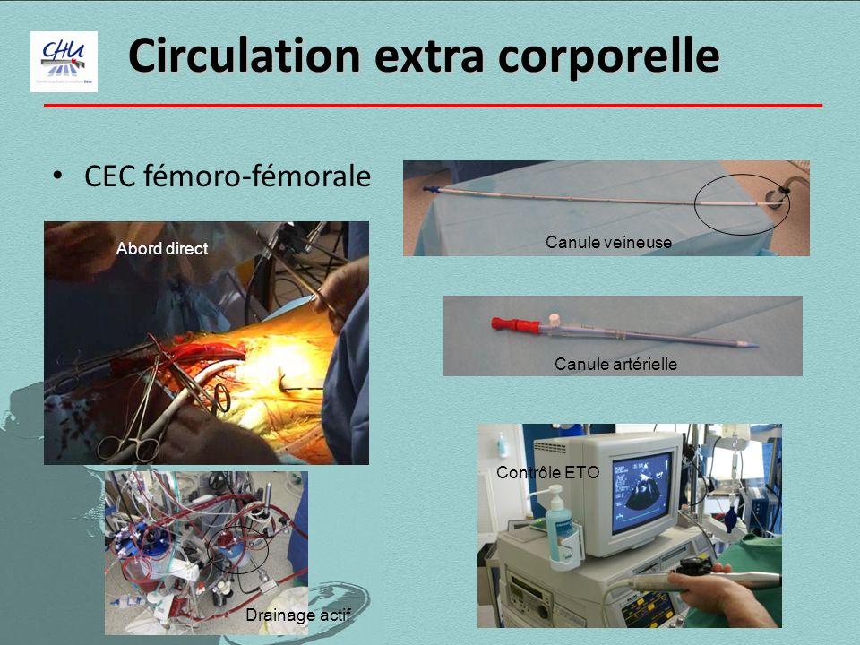 CEC fémoro-fémorale Circulation extra corporelle Canule veineuse Canule artérielle Contrôle ETO Abord direct Drainage actif