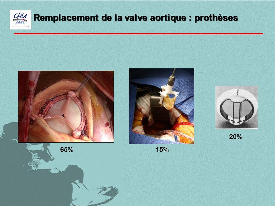 65%15% 20% Remplacement de la valve aortique : prothèses