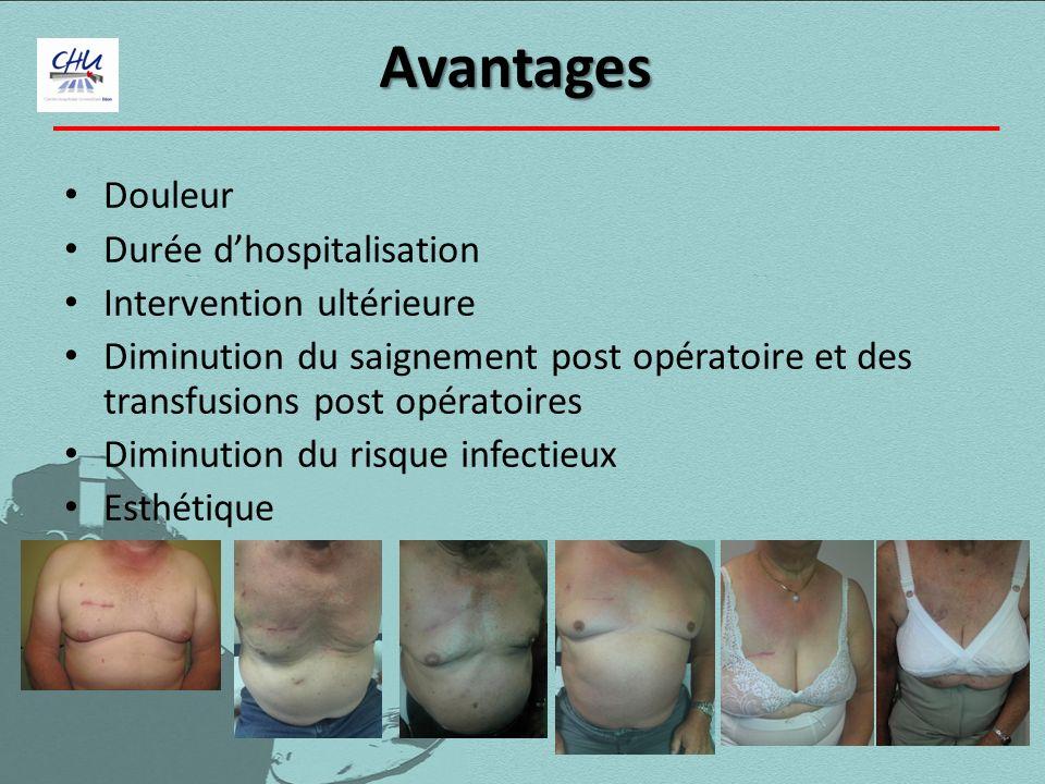Douleur Durée dhospitalisation Intervention ultérieure Diminution du saignement post opératoire et des transfusions post opératoires Diminution du ris