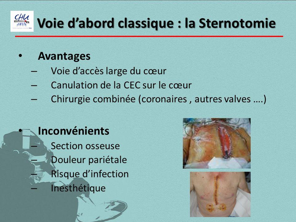 Voie dabord classique : la Sternotomie Avantages – Voie daccès large du cœur – Canulation de la CEC sur le cœur – Chirurgie combinée (coronaires, autr