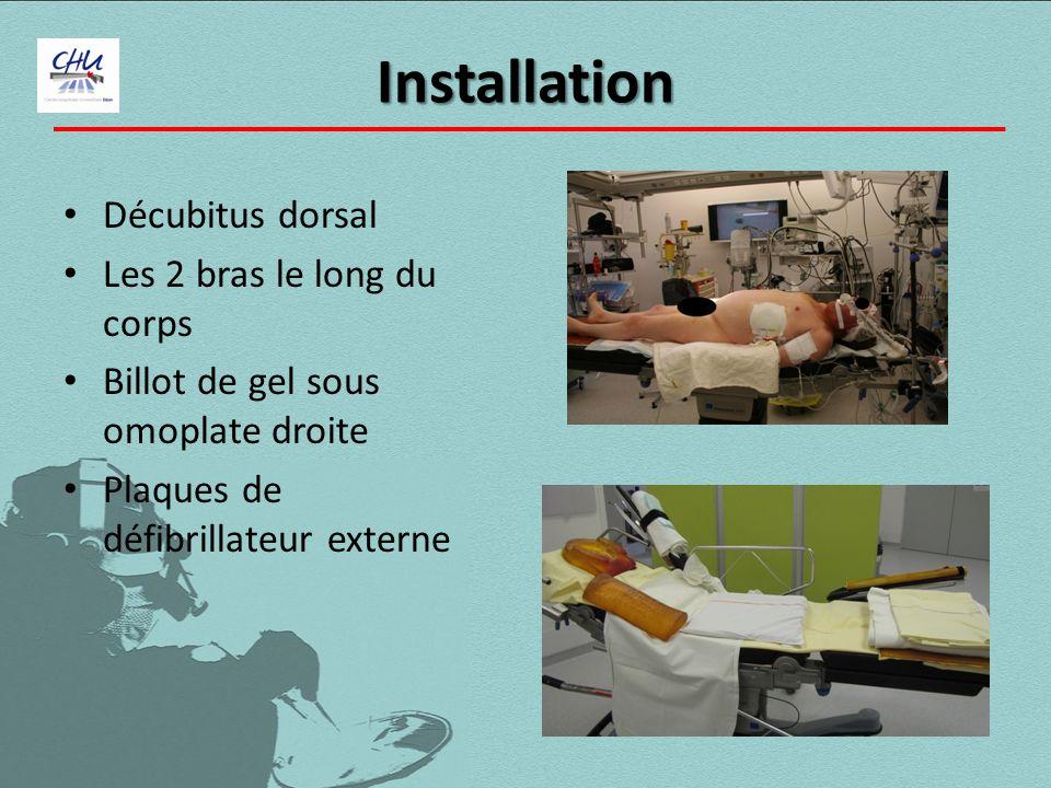 Installation Décubitus dorsal Les 2 bras le long du corps Billot de gel sous omoplate droite Plaques de défibrillateur externe