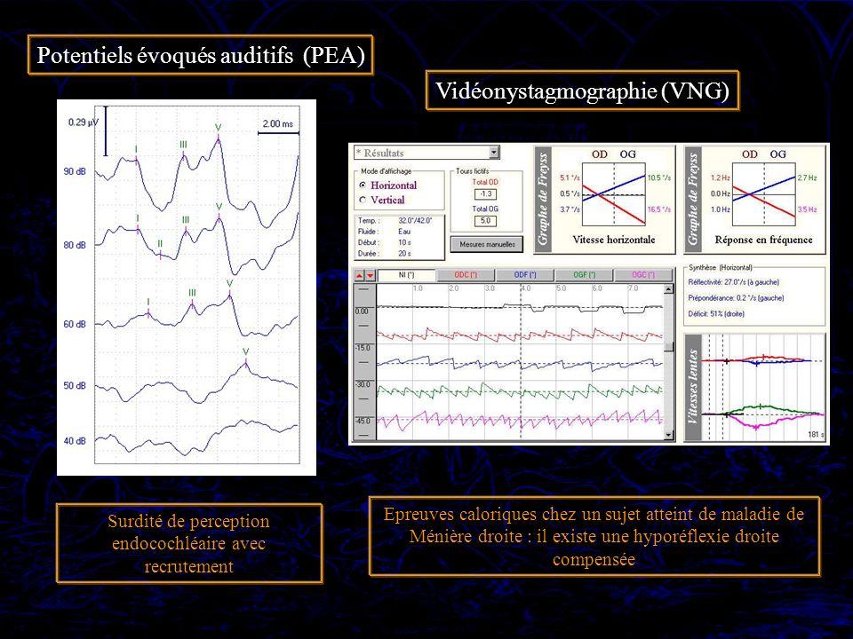 Potentiels évoqués auditifs (PEA) Vidéonystagmographie (VNG) Surdité de perception endocochléaire avec recrutement Epreuves caloriques chez un sujet a
