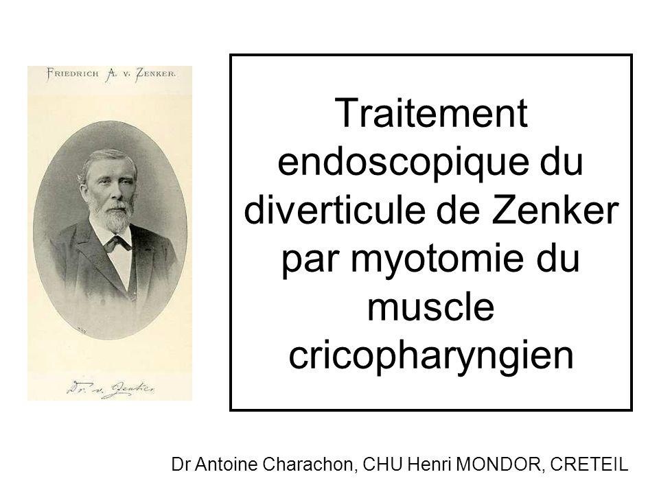 Traitement endoscopique du diverticule de Zenker par myotomie du muscle cricopharyngien Dr Antoine Charachon, CHU Henri MONDOR, CRETEIL