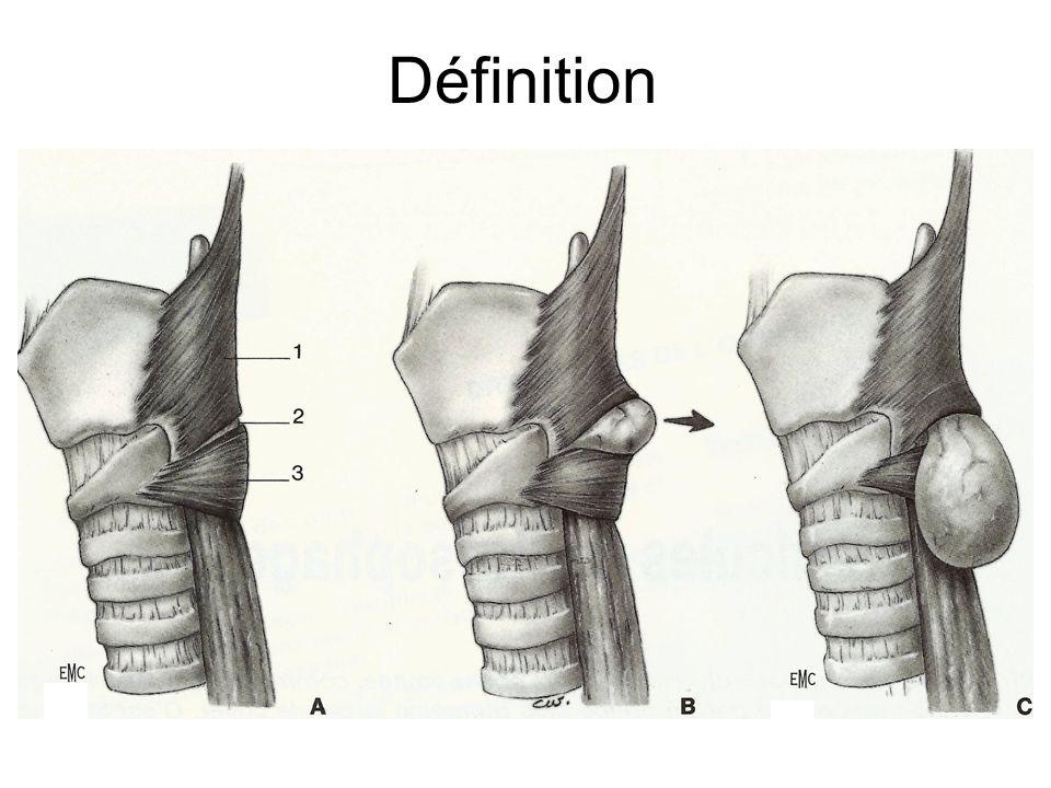 Chirurgical: cervicotomie, myotomie et résection du diverticule Endoscopique (tube rigide): myotomie du crycopharyngien par agrafage et section mécanique ou par laser.