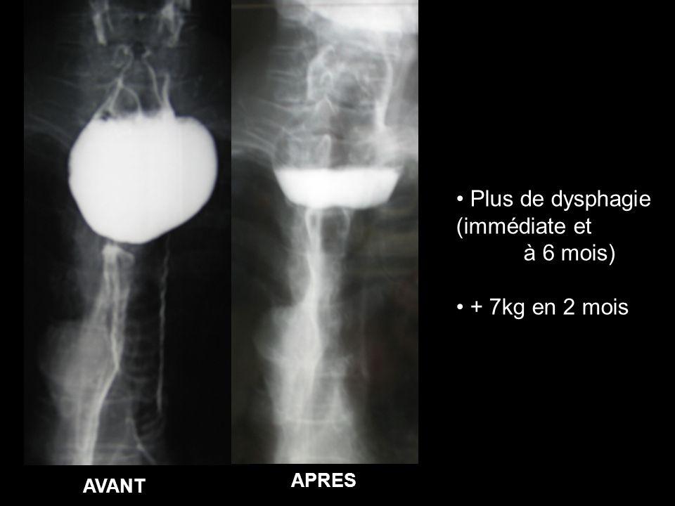 AVANT APRES Plus de dysphagie (immédiate et à 6 mois) + 7kg en 2 mois