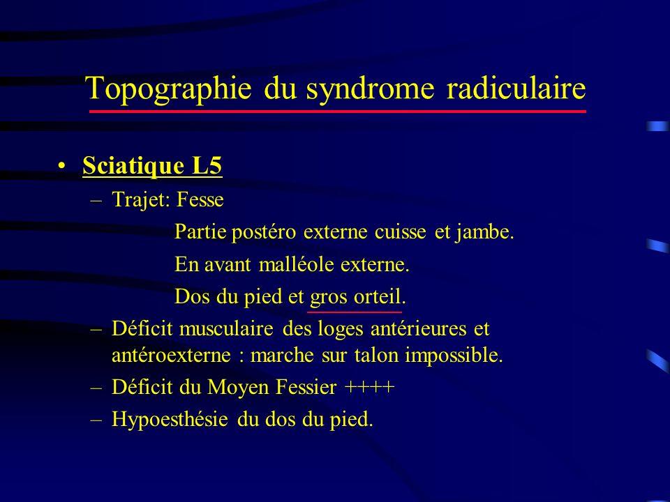 Topographie du syndrome radiculaire Sciatique L5 –Trajet: Fesse Partie postéro externe cuisse et jambe. En avant malléole externe. Dos du pied et gros