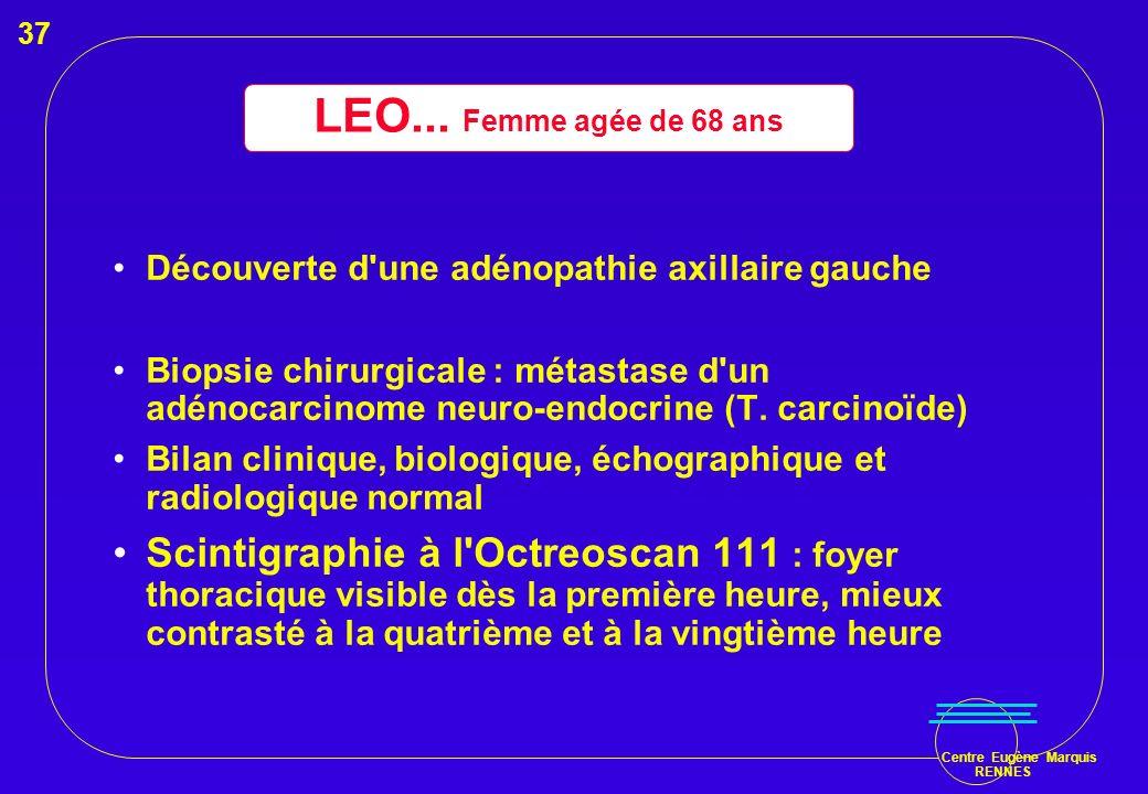 Centre Eugène Marquis RENNES Découverte d'une adénopathie axillaire gauche Biopsie chirurgicale : métastase d'un adénocarcinome neuro-endocrine (T. ca