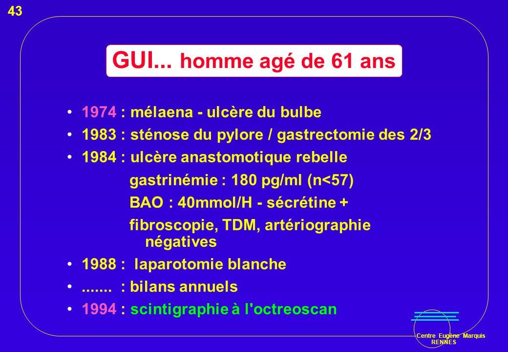 Centre Eugène Marquis RENNES GUI... homme agé de 61 ans 1974 : mélaena - ulcère du bulbe 1983 : sténose du pylore / gastrectomie des 2/3 1984 : ulcère