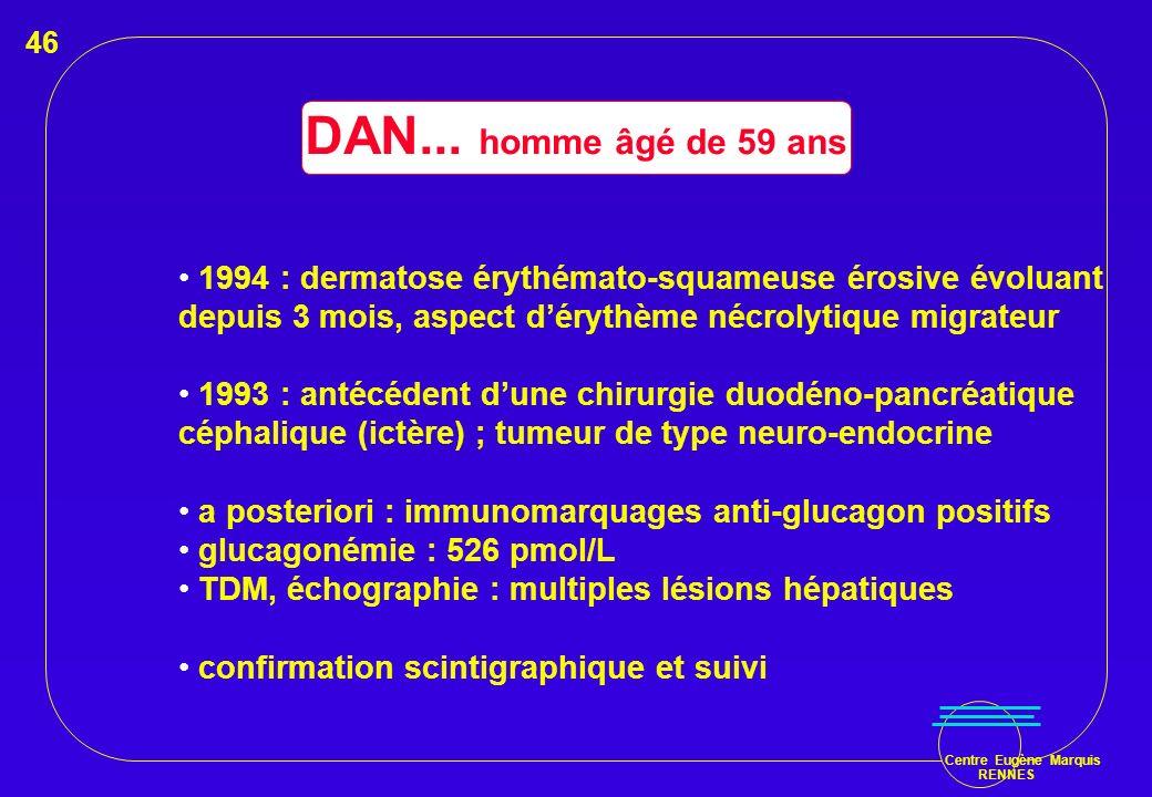 Centre Eugène Marquis RENNES DAN... homme âgé de 59 ans 1994 : dermatose érythémato-squameuse érosive évoluant depuis 3 mois, aspect dérythème nécroly