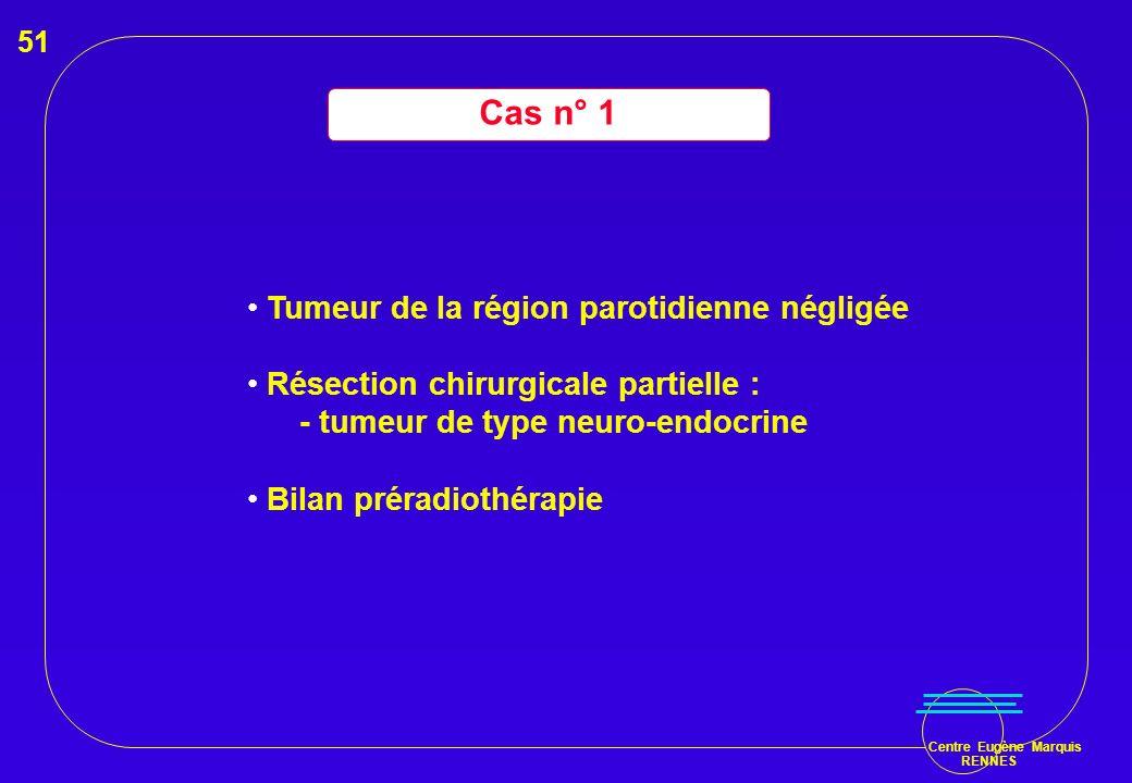 Centre Eugène Marquis RENNES Cas n° 1 Tumeur de la région parotidienne négligée Résection chirurgicale partielle : - tumeur de type neuro-endocrine Bi