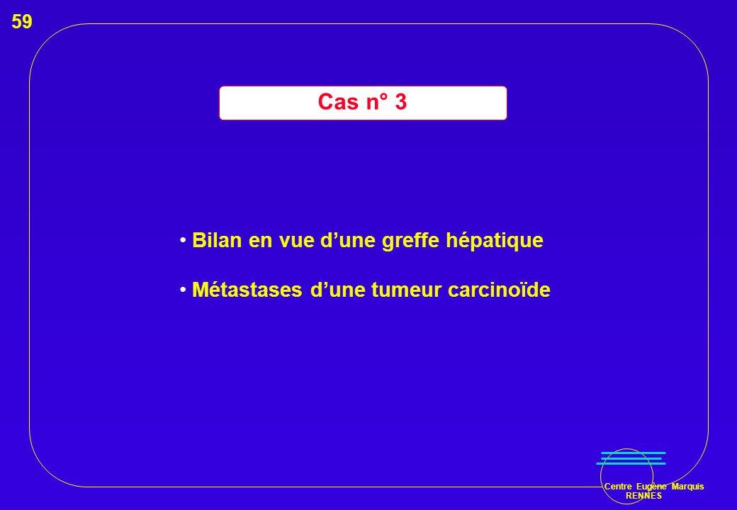 Centre Eugène Marquis RENNES Cas n° 3 Bilan en vue dune greffe hépatique Métastases dune tumeur carcinoïde 59