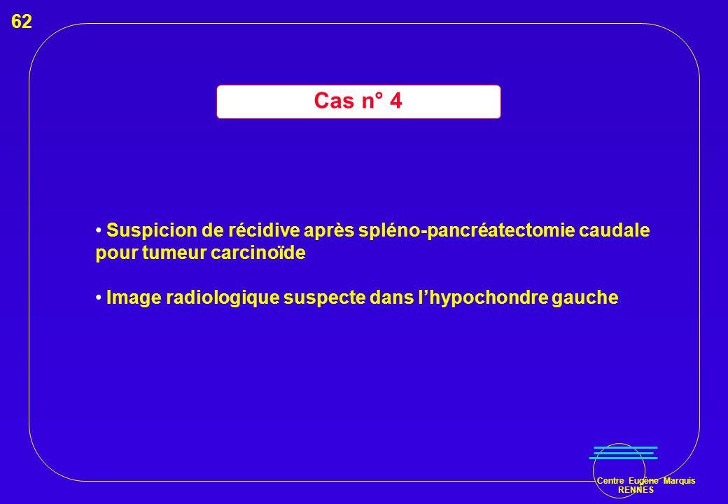 Centre Eugène Marquis RENNES Cas n° 4 Suspicion de récidive après spléno-pancréatectomie caudale pour tumeur carcinoïde Image radiologique suspecte da