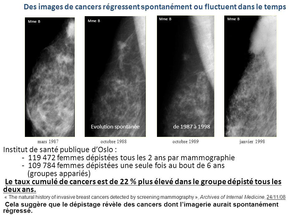 mars 1987octobre 1988octobre 1989janvier 1998 Des images de cancers régressent spontanément ou fluctuent dans le temps Evolution spontanée de 1987 à 1