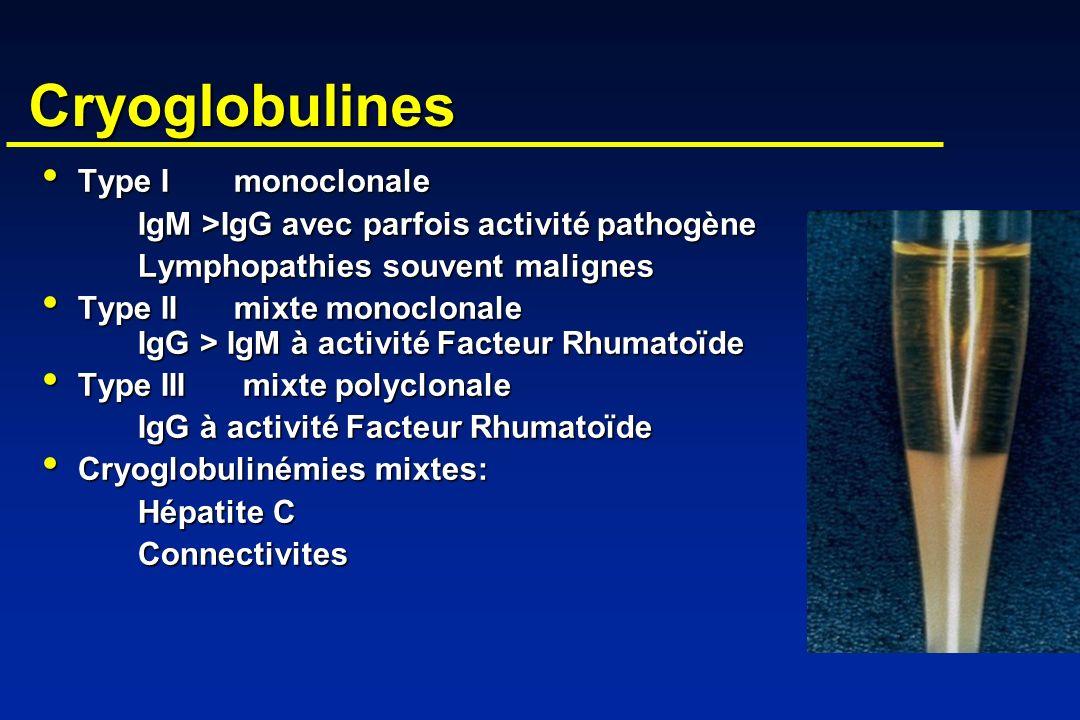 Cryoglobulines Type Imonoclonale Type Imonoclonale IgM >IgG avec parfois activité pathogène Lymphopathies souvent malignes Type IImixte monoclonale Ig