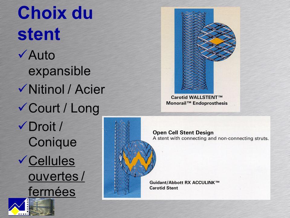 Choix du stent Auto expansible Nitinol / Acier Court / Long Droit / Conique Cellules ouvertes / fermées