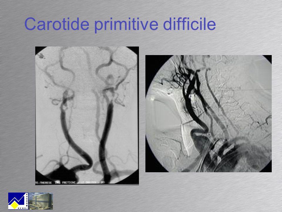 Carotide primitive difficile