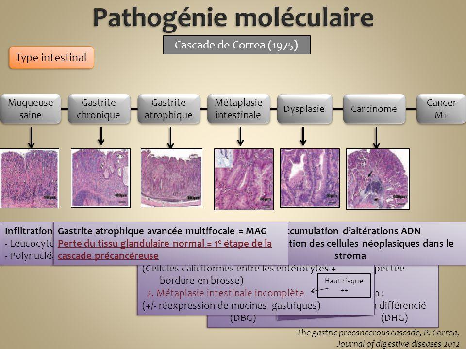 Phénotype néoplasique 1.morphologie cellulaire (noyaux volume, hyperchromiques, mitoses) 2.Organisation des glandes non respectée Gradient de différen