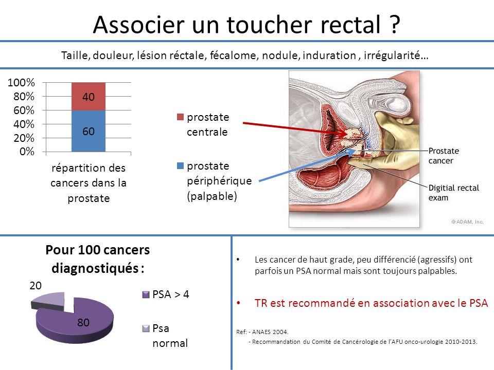 Associer un toucher rectal ? Les cancer de haut grade, peu différencié (agressifs) ont parfois un PSA normal mais sont toujours palpables. TR est reco