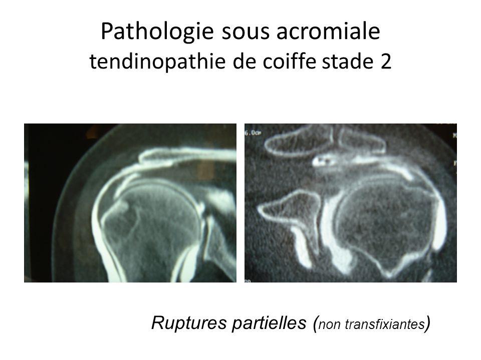 Pathologie sous acromiale tendinopathie de coiffe stade 2 Ruptures partielles ( non transfixiantes )
