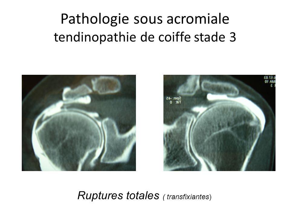 Pathologie sous acromiale tendinopathie de coiffe stade 3 Ruptures totales ( transfixiantes)