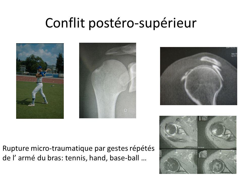 Conflit postéro-supérieur Rupture micro-traumatique par gestes répétés de l armé du bras: tennis, hand, base-ball …