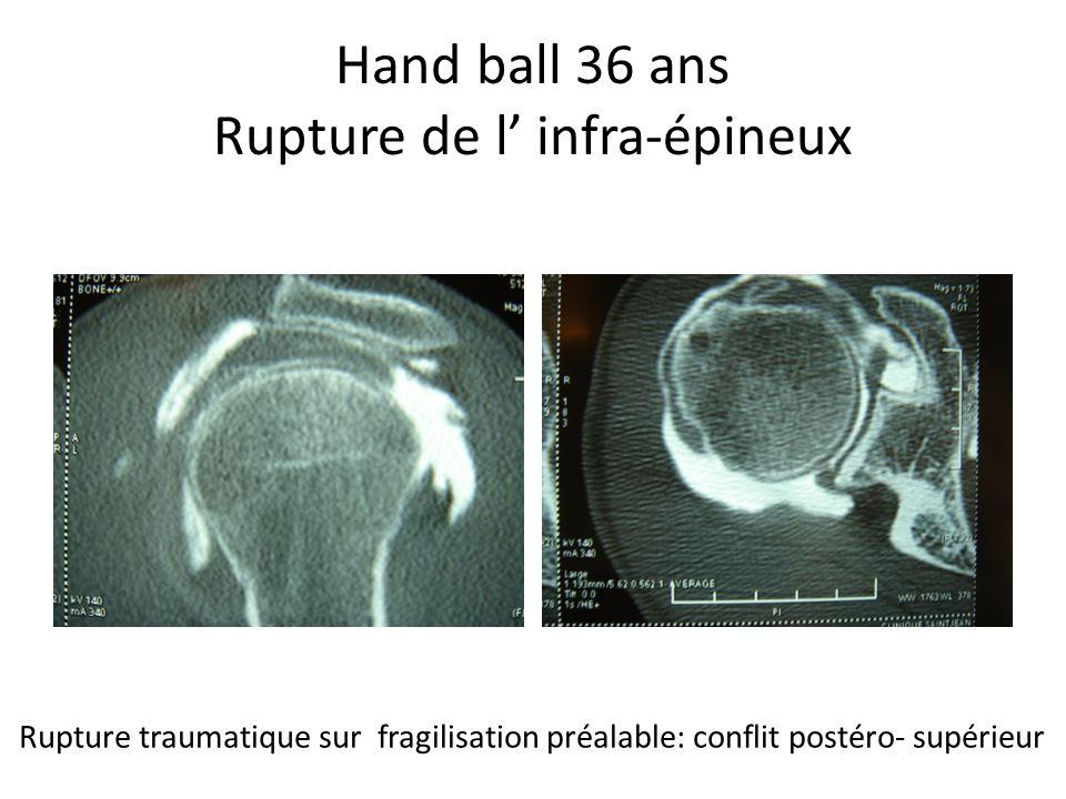Hand ball 36 ans Rupture de l infra-épineux Rupture traumatique sur fragilisation préalable: conflit postéro- supérieur