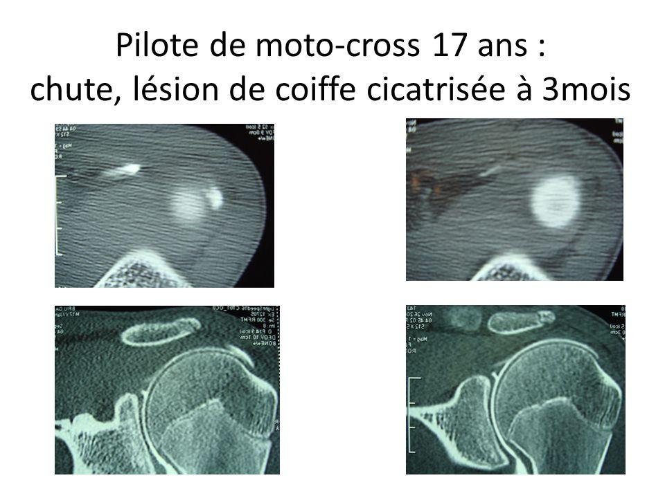 Pilote de moto-cross 17 ans : chute, lésion de coiffe cicatrisée à 3mois