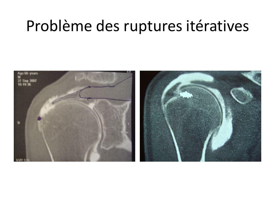 Problème des ruptures itératives