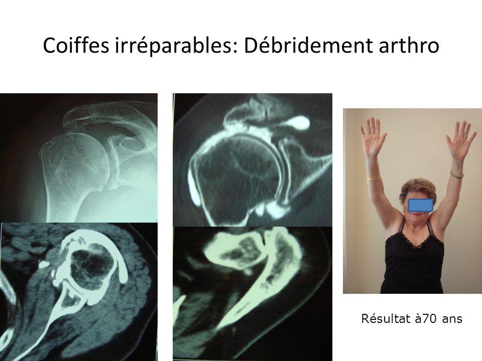 Coiffes irréparables: Débridement arthro Résultat à70 ans