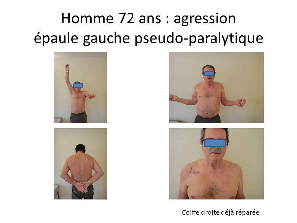 Homme 72 ans : agression épaule gauche pseudo-paralytique Coiffe droite déjà réparée
